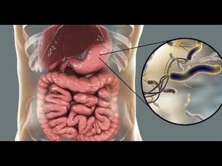 ★ Как избавиться от бактерии Хеликобактер пилори. Питание и образ жизни при бактерии Helicobacter