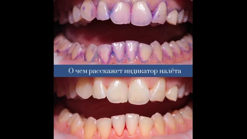 О чем расскажет индикатор зубного налёта 💁🏻♀️ ⠀Зубной налёт отправная точка стоматологических заболеваний ⠀Если налёт не