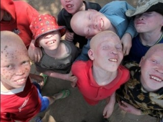 Судьба альбиносов - Моя Ужасная История