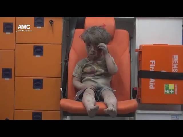 Ümran 5 yaşında. Halepte enkaz altından kurtarıldı. Tüm insanlığa küs...