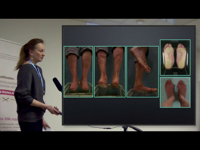 Плоскостопие - мифы и реальность современные возможности в руках травматолога-ортопеда.