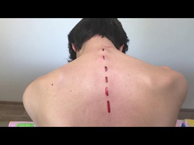 Результаты костоправской правки Как поставить позвонки на место