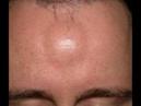 Как удалить жировик Удаление жировика без операции На лице теле травой
