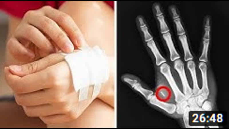 Смотрите, как опасно ходите сгорел чип в руке