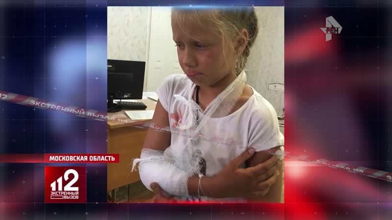 Клыки намертво сдавили хрупкую детскую руку | Нападение собаки