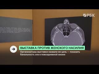 Выставка против женского насилия