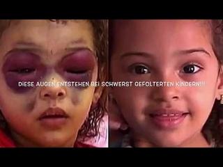 Aufgewacht - Trailer für Befreit die Kinder