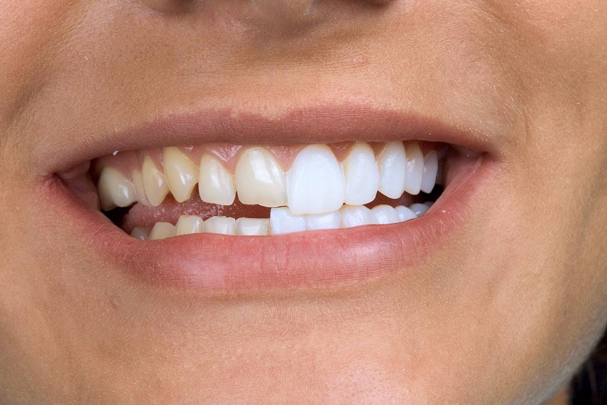 Варианты исправления аномалий положения зубов