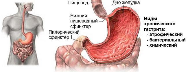 Народные методы лечения хронического гастрита