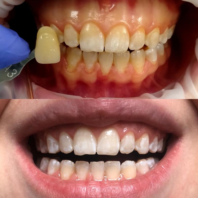 Отбеливание зубов при флюорозе, изображение №1